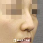 【鼻尖形成&鷲鼻削り|si302】鼻尖形成で鼻先を整えてシャープな鼻にの症例
