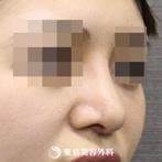 【鼻尖形成(軟骨移植)・隆鼻術(シリコンプロテーゼ)|si4002】スッと鼻先の高い鼻にの症例