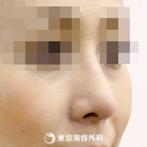 斜鼻・鼻尖形成(軟骨移植)|si558】綺麗なラインの鼻にの症例