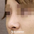 【鼻尖形成、鷲鼻削り(ハンプ削り)|si59】スマートな外国人風の鼻にの症例