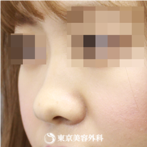 鼻尖形成(軟骨移植)|si840】鼻のバランスが整って大人っぽい印象にの症例