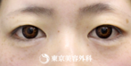 【埋没二重(オープンアイズ)|si585】綺麗なパッチリ二重にの症例