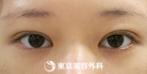 【埋没二重(3点留め)、まぶたの脂肪取り、マイクロカット|um2700】パッチリ二重にの症例