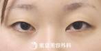 【埋没二重(4点留め)、まぶたの脂肪取り|ak3611】自然な二重で美人顔にの症例