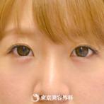 【涙袋ヒアルロン酸|gz6571】自然な涙袋で可愛らしさUPの症例