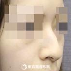 鼻尖形成、鼻中隔延長(切開法+軟骨移植)、鼻骨骨切り、鷲鼻削り(ハンプ削り)|si3785】鼻筋の通った綺麗な鼻にの症例