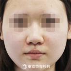 鼻尖形成、隆鼻術(プロテーゼ)|si4833】団子鼻をシュッとしたキレイな鼻にの症例