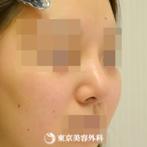 鼻中隔延長(軟骨移植)、隆鼻術(オーダーメードプロテーゼ)、小鼻縮小(内側)、鼻尖形成、鼻骨骨切り|gz6306_】団子鼻をシュッとしたキレイな鼻にの症例