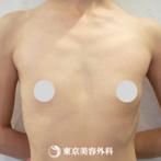 【豊胸(バッグ挿入)|um2686】ふっくらとした胸元にの症例