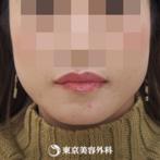 【小顔えらボツリヌストキシン|fy5548】注射でえらのボリュームを自然にダウンの症例