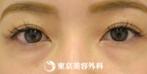 【ヒアルロン酸涙袋|gz5077】優しい印象の目元にの症例