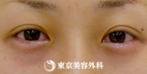 【ヒアルロン酸涙袋|gz5320】可愛らしい目元にの症例