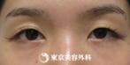 【埋没二重(クイック2点)|sd646】パッチリ二重で可愛らしい目元にの症例