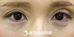 【ヒアルロン酸涙袋|si732】優しい潤いある目元にの症例