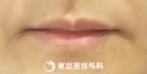 【口唇ヒアルロン酸注入|um2859】プルっとふっくら魅力的な唇にの症例