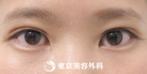 【埋没二重(プレミアム)、目の上脂肪取り|ak4692】大きな目で優しい印象にの症例