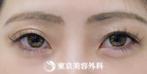 【アーモンドアイ ボツリヌストキシン|as001】黒目の見える範囲が大きくなりましたの症例