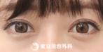 【眼瞼下垂(オープンアイズ)|as270】ハッキリした印象的な目元にの症例