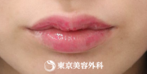【口唇ヒアルロン酸注入|as270】愛らしい唇のシルエットにの症例