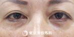 【目の下脂肪取り、目の下ヒアルロン酸|fy7601】目の下がスッキリの症例