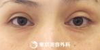 【目の下脂肪取り、目の下のたるみ取り|um4091】若々しい印象の目元にの症例