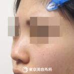 隆鼻術(オーダーメードプロテーゼ)、小鼻縮小(外側切開)、ケーブル法|ak3748_】鼻筋が通りバランスが整いましたの症例