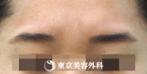 【しわ ボツリヌストキシン(眉間)|ar3868】表情を変えた時の深いシワが軽減の症例