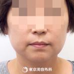 【脂肪吸引(ホホ・フェイスライン・アゴ)|ar5431】痩せにくいフェイスラインがスッキリの症例