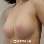 【豊胸(バッグ挿入)|um4795】キレイにサイズアップの症例