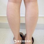 【両下腿ボツリヌストキシン(ふくらはぎ)|ak3066】筋肉のボリュームが減って脚やせ実感の症例