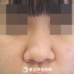 【鼻プロテ、鼻中隔延長、鼻尖形成、鼻骨切|si7219】小鼻が小さくなりスッと綺麗な鼻にの症例
