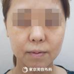 【オルチャンリフト|fy7549】引上げ効果でお顔全体がスッキリした印象にの症例