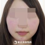 【小顔BNLS注射(8本×3回)|ha2852】もったりしたフェイスラインがスッキリ!の症例
