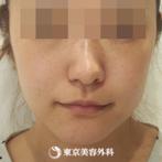 【オルチャンリフト、ゴルゴラインヒアルロン酸注入|ou3381】施術直後ですぐに引上げを実感の症例