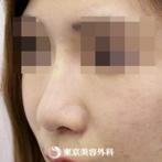 【鼻ヒアルロン酸|si4922】注射だけでスッと通った鼻筋にの症例