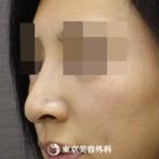 鼻中隔延長、鷲鼻削り(ハンプ削り)|si594】スッと綺麗な鼻にの症例