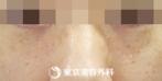 【汗管腫|ou1732】目の下のプツプツを治療の症例