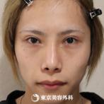 【二重全切開、目の上のたるみ+脂肪取り、目頭切開、涙袋ヒアルロン酸、鼻オーダーメードプロテーゼ、鼻中隔延長、鼻尖形成(軟骨移植)|um3592】の症例