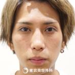 【眼瞼下垂、目の上のたるみ+脂肪取り、鼻オーダーメードプロテーゼ、鼻中隔延長、鼻尖形成(軟骨移植)、鼻ハンプ削り、小鼻縮小(内側切開)|um3593】の症例