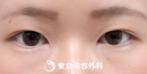 【埋没二重(クイック2点)|sd1294】の症例