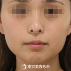 【ルメッカ|um5990】細かいシミまでしっかり反応し肌トーンもアップの症例