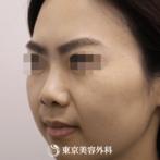 【鼻中隔延長(軟骨移植)、隆鼻術(オーダーメードプロテーゼ)|si9495】お顔にマッチした自然な鼻にの症例