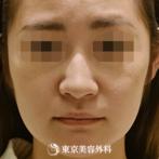 【小鼻縮小、鼻中隔延長(軟骨移植)|gq10188】小鼻縮小でシャープな自然な鼻にの症例