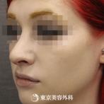 【鼻尖形成、ハンプ削り)|si3024】魔女鼻を自然な上向きの鼻にの症例
