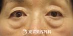 【目の下のタルミ脂肪取り)|ST1604】目の下のタルミ取りで若々しい目元にの症例