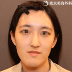 【顎矯正手術、オトガイ形成|ta1466】シャクレ、長い顔、ガミー、非対称を一気に治療の症例