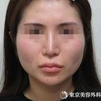 【頬骨骨切り、下顎角形成、外板切除、削り、咬筋切除|st1296】丸びをおびた卵型輪郭にの症例