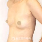 【豊胸(バッグ挿入)|UM5677】ハリのある形の良いバストにの症例