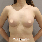 【豊胸(バッグ挿入)|SI10200】自然な形と柔らさかなバストにの症例