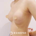 【豊胸(バッグ挿入)|UM5995】ハリのある形の良いバストにの症例